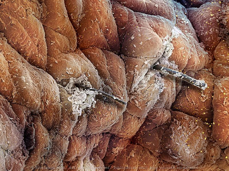 Skin & Bacteria