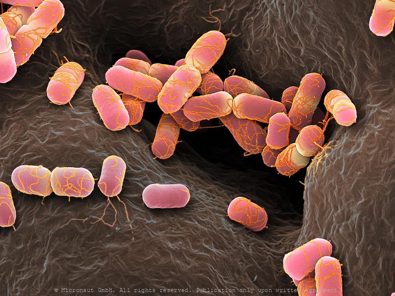 Escherichia coli bacteria, Nr.2 (red)