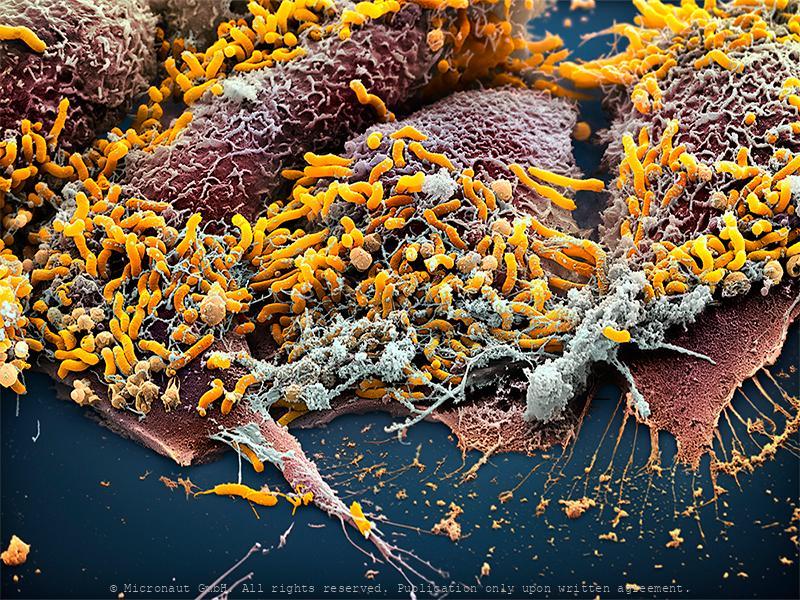 Bacteria (Helicobacter pylori)