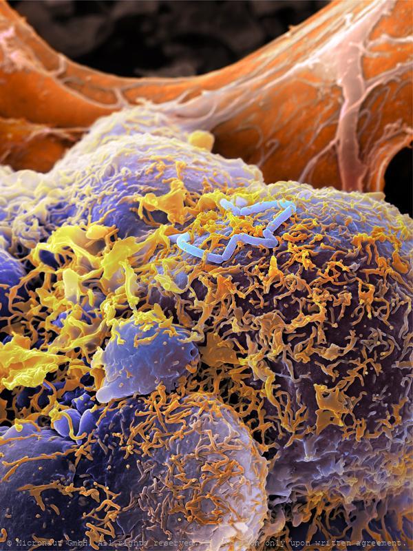 ©-Micronaut-Bacteria-Lysteria-FHNW004a1_mini2