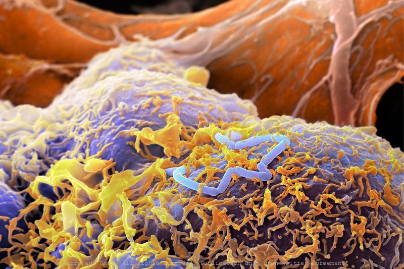 ©-Micronaut-Bacteria-Lysteria-FHNW004a1_mini2_crop