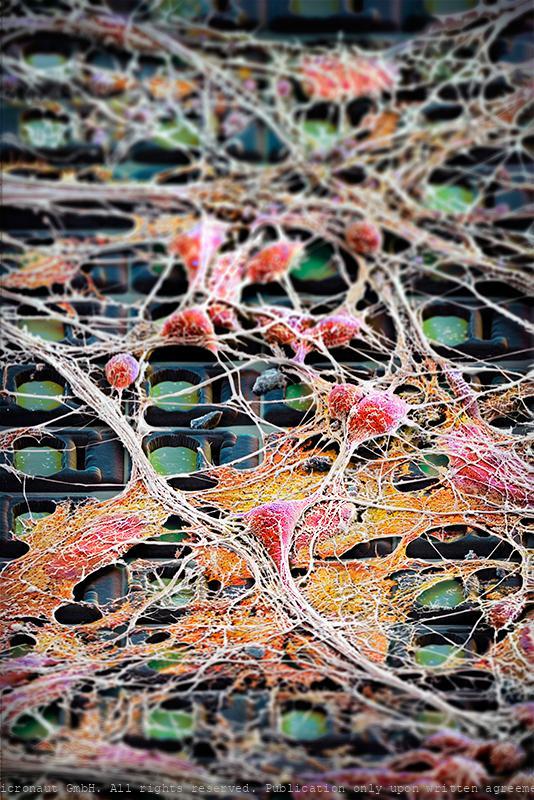 Neuronal Highways - Brain Cells on a Chip