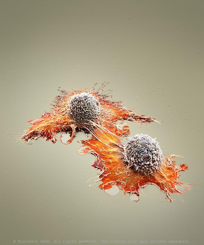 Clonal evolution versus cancer stem cell theory