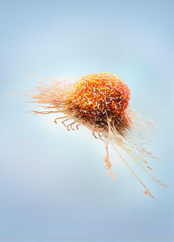 Cancer Cell Extensions
