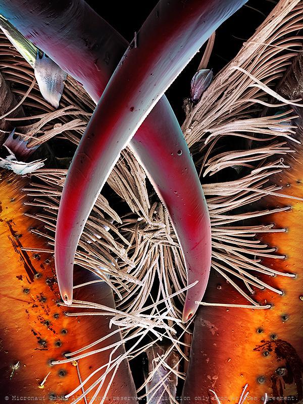 Spider bite (Chiracanthium punctorium)