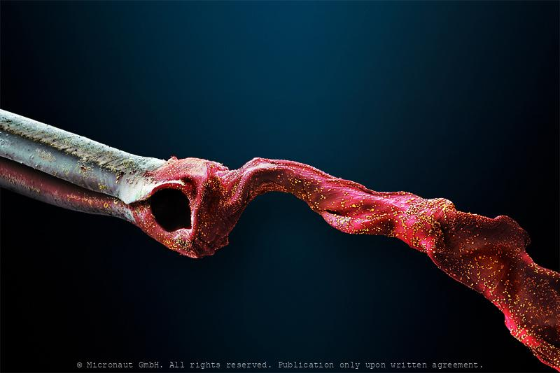 Ambush Weapon - The Conus Snail Radula Tooth (Conus striatus)