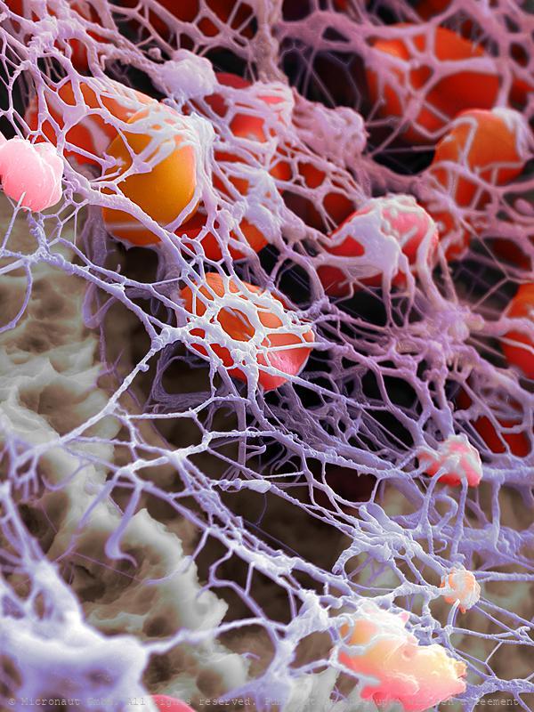 Fibrin network and blood cells (H. sapiens)