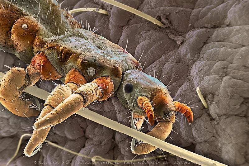 Head louse (Pediculus humanus capitis), Nr.3