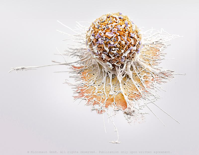 Invasively Growing Cancer Cell