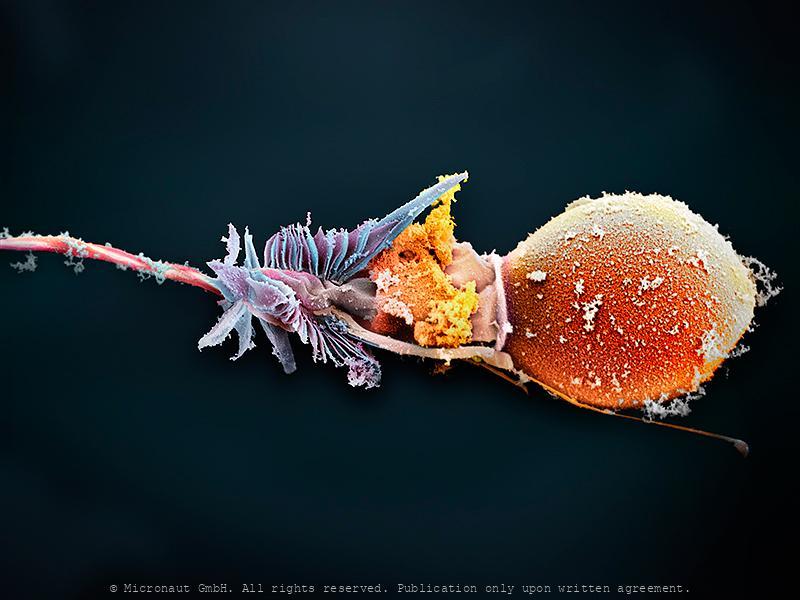 The Magic Bullet - Cnidocyte