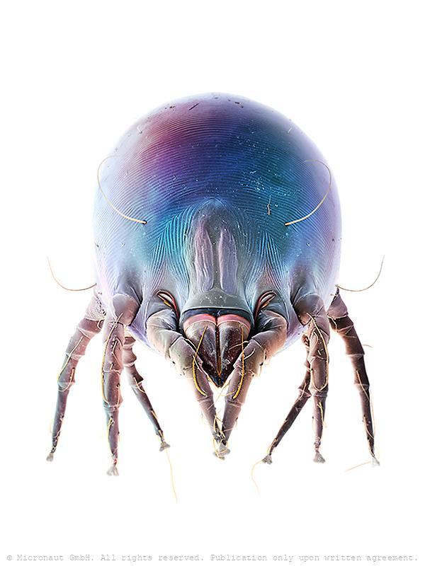 House Dust Mite (D. farinae), Nr.1
