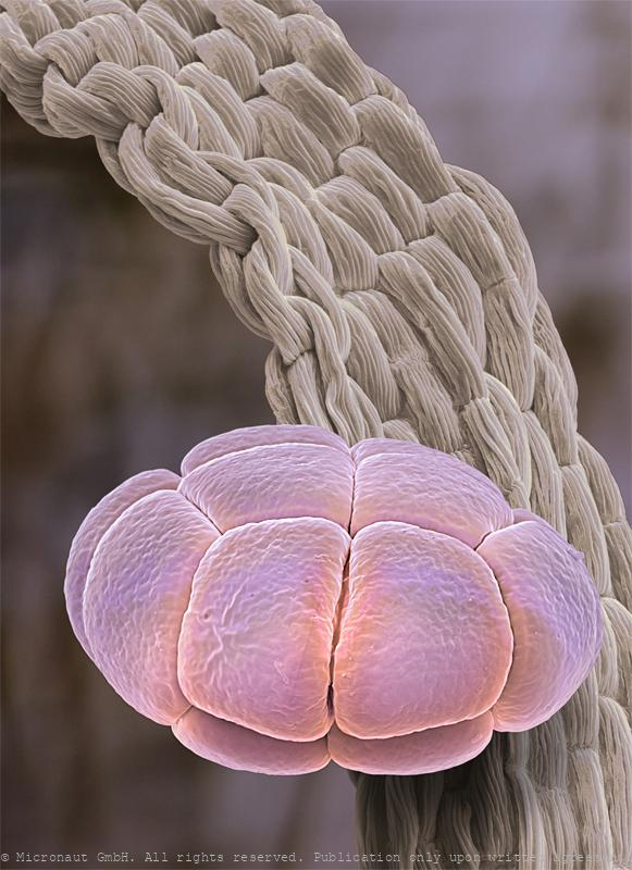 Pollen (Albizia julibrissin)