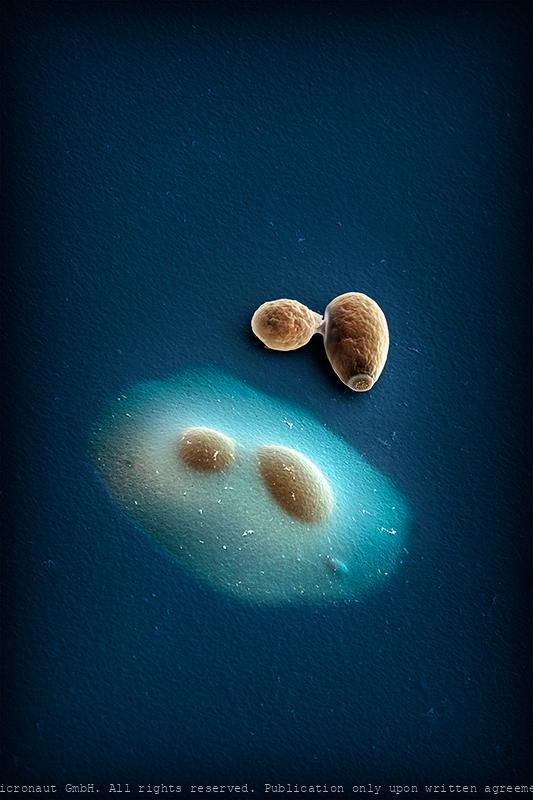 Encapsulated vs. normal yeast cells