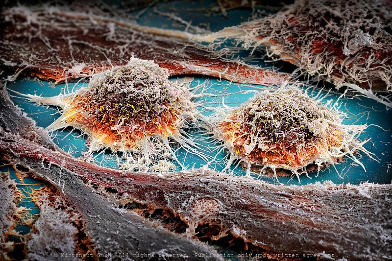 Immortalized human cells